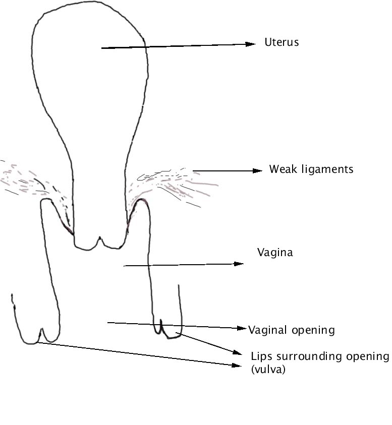 prolapse of the vagina and uterus illustrated